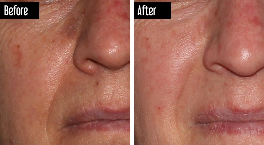 IPL – Before and After Age Spots