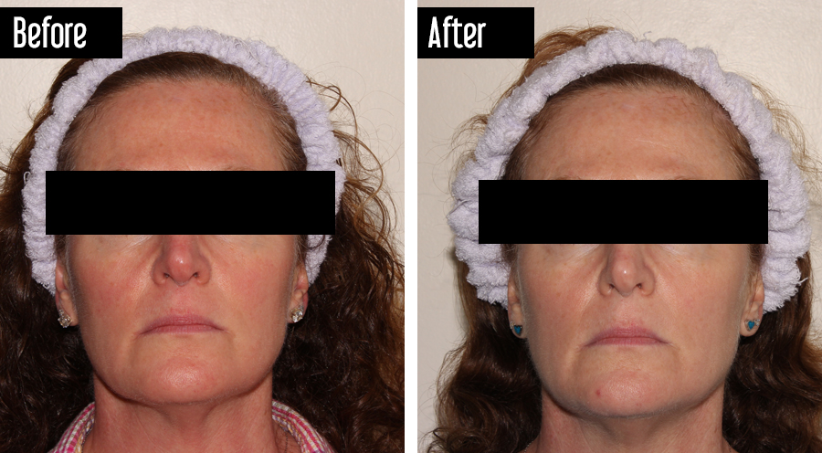 IPL – Before and After Rosacea