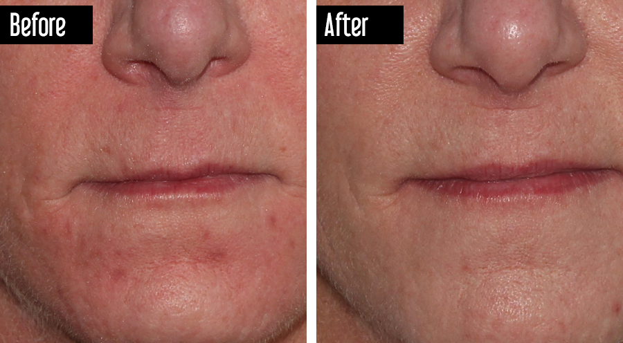 Fraxel - Before and After Acne Scars, Fine Lines