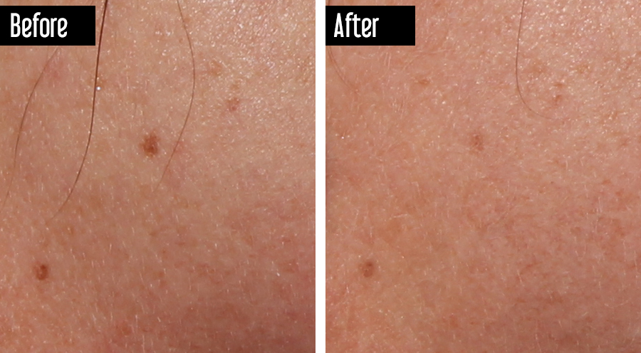 Fraxel - Before After Sun Spots