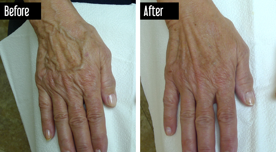 Sclerotherapy – Before After Hand Veins