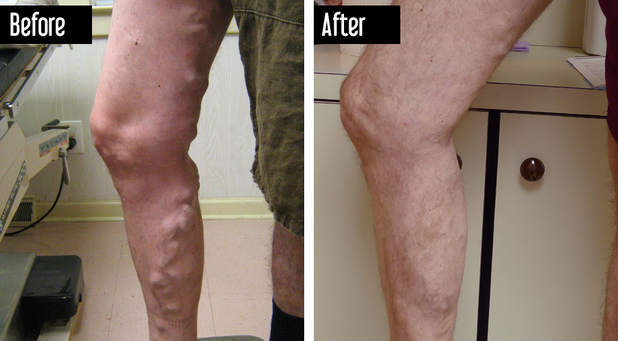 UGS, Sclerotherapy – Before After Large Varicose Veins