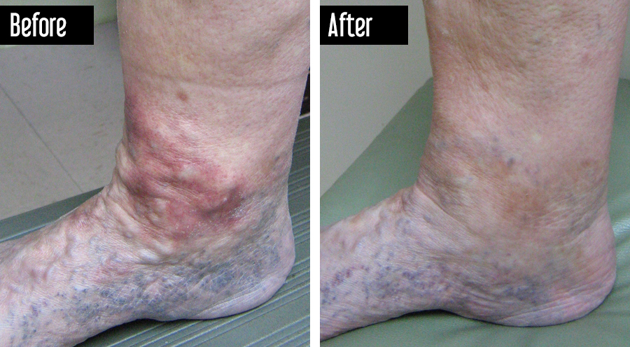 UGFS – Before After Photo Varicose Veins on Foot