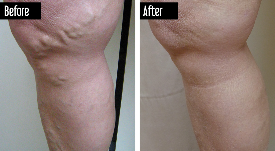 Closure, Sclerotherapy – Before After Photo Varicose Veins