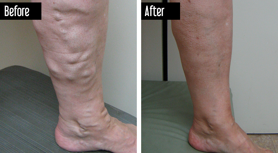Closure – Before After Varicose Veins on Leg