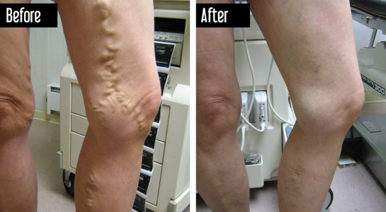 Closure - Before and After Varicose Veins