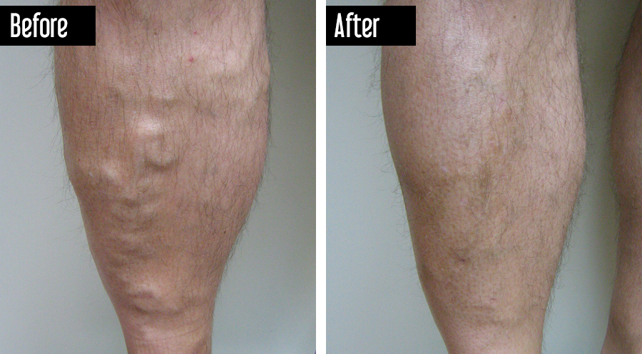 Closure – Before After Varicose Veins on Legs