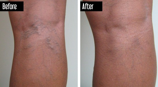 UGS, Sclerotherapy – Before After Photo Larice Veins Behind Knee