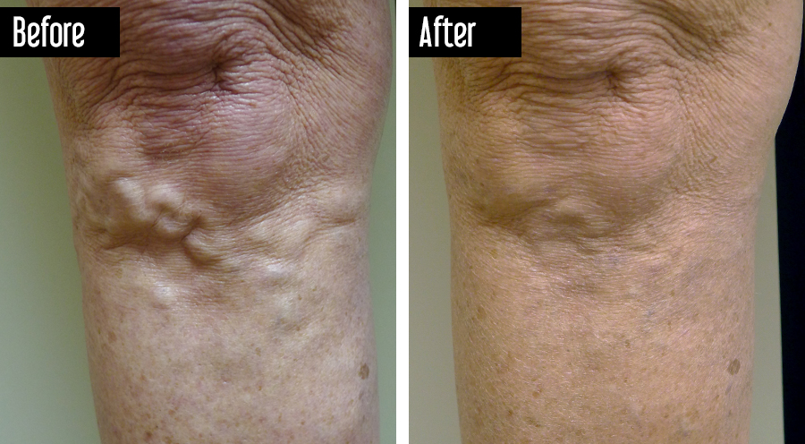 Closure Followed by Sclerotherapy – Before After Varicose Veins