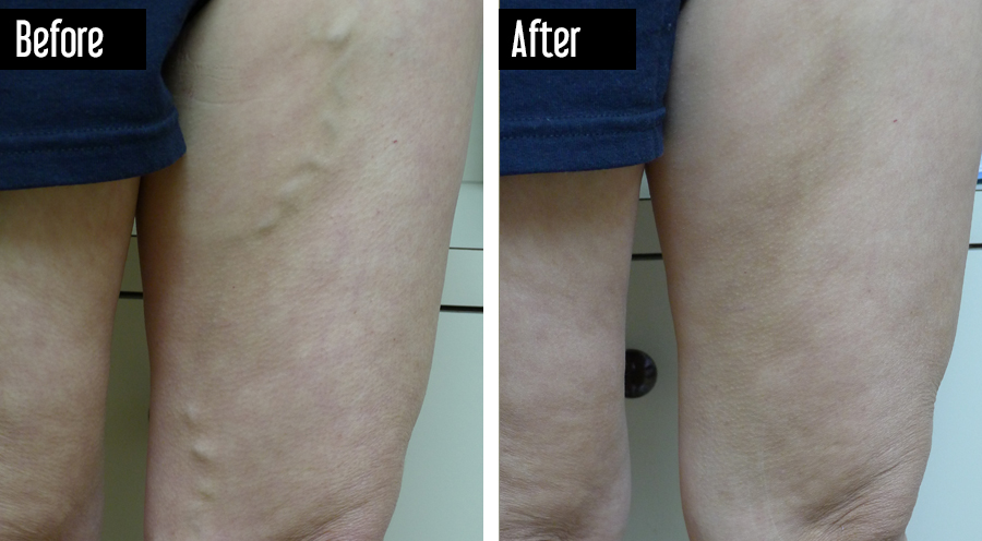 Closure, Sclerotherapy – Before After Varicose Veins
