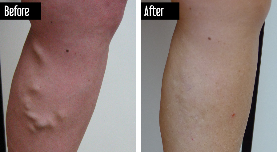 Closure, Sclerotherapy, UGFS - Before After Varicose Veins on Leg