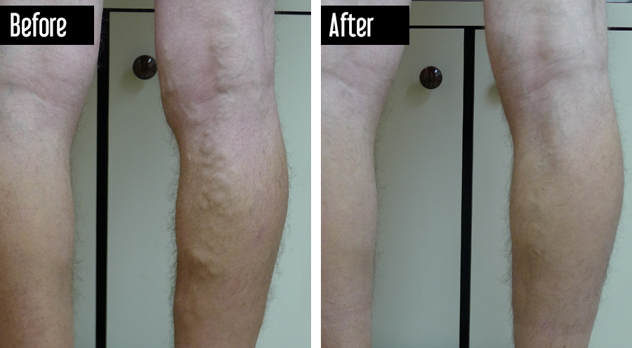 Varicose Veins Before and After Photo