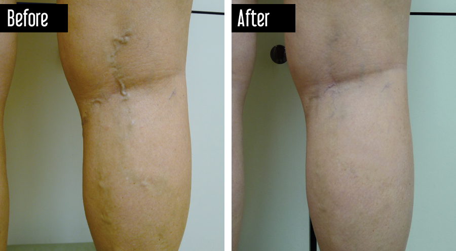 Sclerotherapy of Varicose Veins Before After Photo